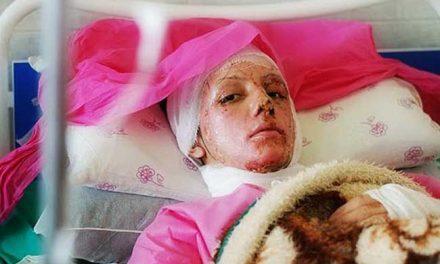 پدیده اسیدپاشی در اصفهان و بازتابها و واکنشها