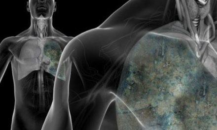افزایش سرطان شغلی و آلودگی زیست محیطی