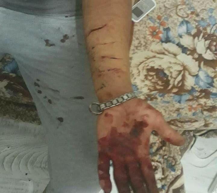 پناهجوی دگرباش در غرب ترکیه مورد حمله قرار گرفت