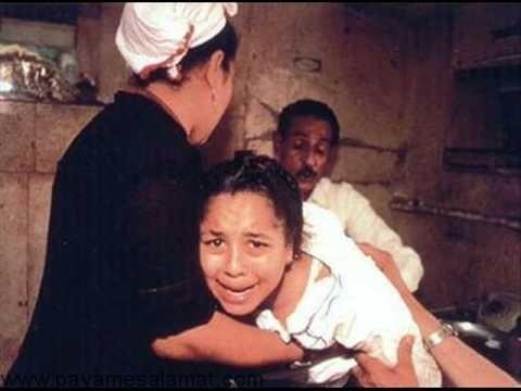 Female-genital-mutilation-1