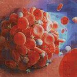 افزایش لخته خون در شریانهای پای بیماران مبتلا به کرونا